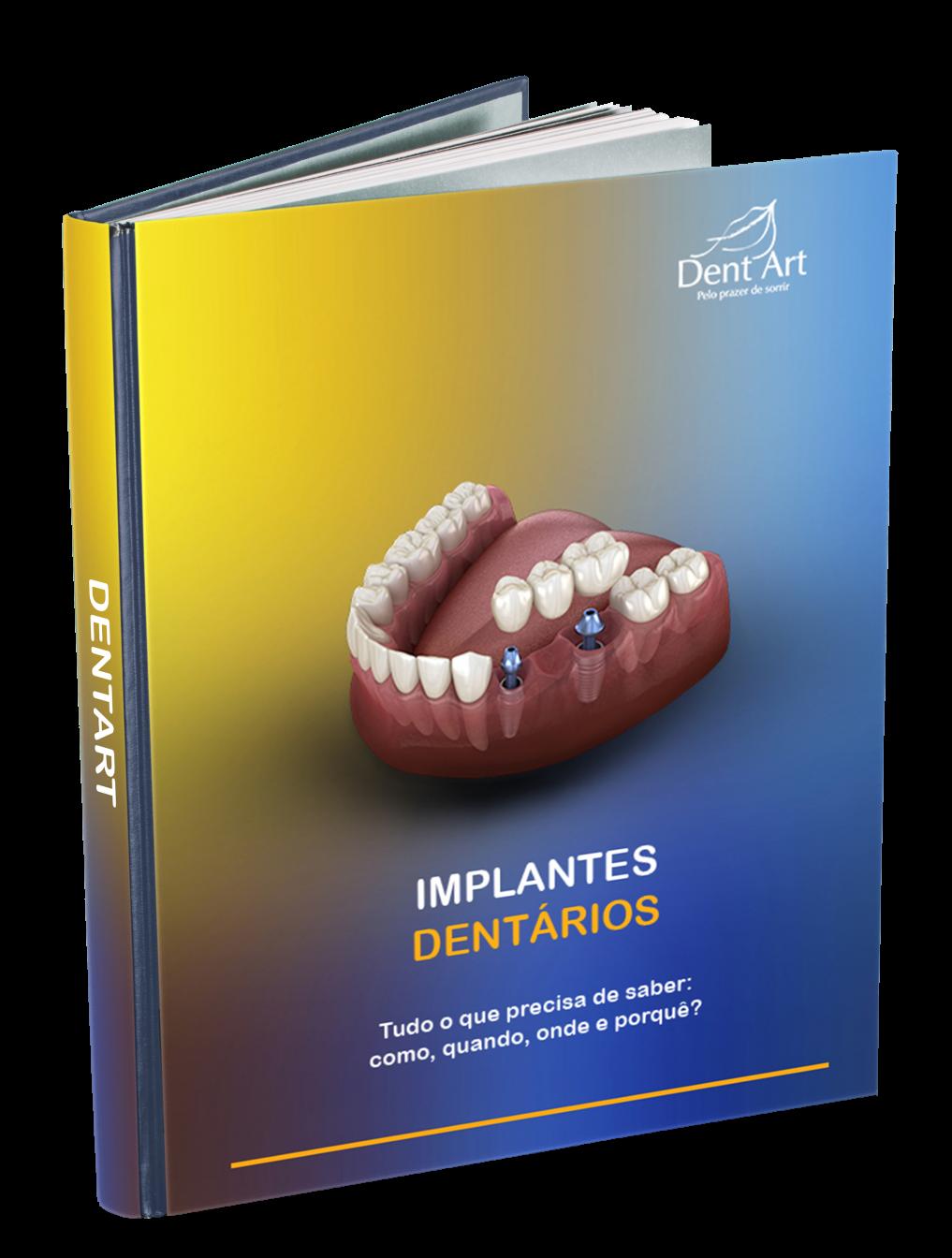 Ebook Implantes Dentários